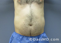 Beverly Hills Liposuction for Men Treatment Results Before and After - Before case 30-1
