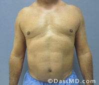 Beverly Hills Liposuction for Men Treatment Results Before and After - After case 32-1