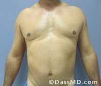 Beverly Hills Liposuction for Men Treatment Results Before and After - Before case 32-1