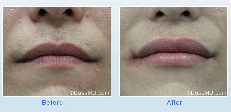 Dr Dennis Dass, MD Lips Before After Case 1