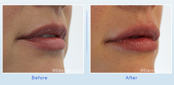 Dr Dennis Dass, MD Lips Before After Case 2