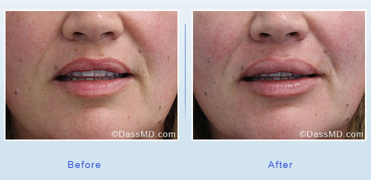Dr Dennis Dass, MD Lips Before After Case 3