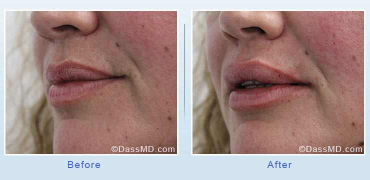 Dr Dennis Dass, MD Lips Before After Case 4