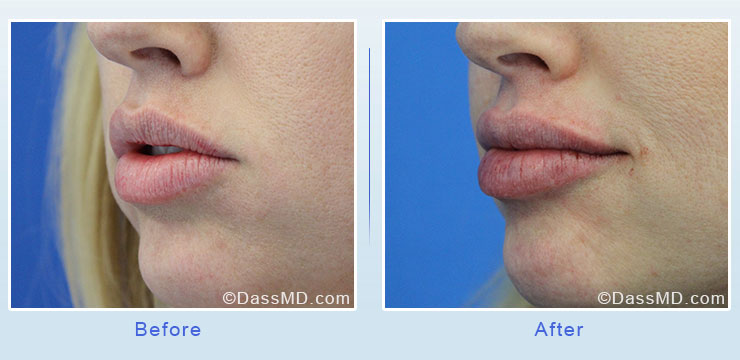 Dr Dennis Dass, MD Lips Before After Case 5