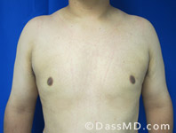 Male Breast Reduction Before and After Beverly Hills - After Case 1 - 1