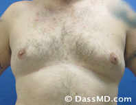 Male Breast Reduction Before and After Beverly Hills - Before Case 02