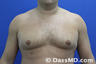 Male Breast Reduction Before and After Beverly Hills - Before Case 03 - 1