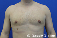 Male Breast Reduction Before and After Beverly Hills - After Case 03 - 1
