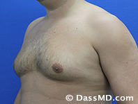 Male Breast Reduction Before and After Beverly Hills - Before Case 03 - 2