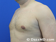 Male Breast Reduction Before and After Beverly Hills - After Case 03 - 2