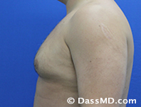 Male Breast Reduction Before and After Beverly Hills - Before Case 03 - 3