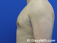 Male Breast Reduction Before and After Beverly Hills - After Case 03 - 3