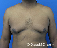 Male Breast Reduction Before and After Beverly Hills - Surgery for Gynecomastia View Before 4 - 1