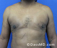 Male Breast Reduction Before and After Beverly Hills - Surgery for Gynecomastia View After 4 - 1