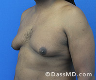 Male Breast Reduction Before and After Beverly Hills - Surgery for Gynecomastia View Before 4 - 2