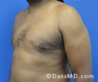 Male Breast Reduction Before and After Beverly Hills - Surgery for Gynecomastia View After 4 - 2