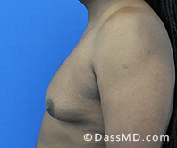 Male Breast Reduction Before and After Beverly Hills - Surgery for Gynecomastia View Before 4 - 3