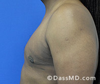 Male Breast Reduction Before and After Beverly Hills - Surgery for Gynecomastia View After 4 - 3