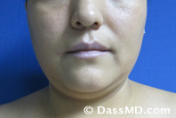 Beverly Hills Chin Liposuction Results - Before - Case 1-1