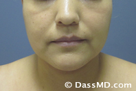 Beverly Hills Chin Liposuction Results - After - Case 1-1