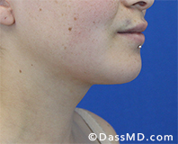 Beverly Hills Chin Liposuction Results - After - Case 10-2