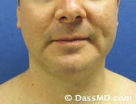 Beverly Hills Chin Liposuction Results - Before - Case 2-1
