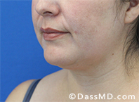 Beverly Hills Chin Liposuction Results - Before - Case 11-2