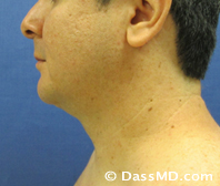 Beverly Hills Chin Liposuction Results - Before - Case 2-2