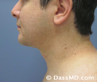 Beverly Hills Chin Liposuction Results - After - Case 2-2