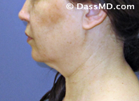 Beverly Hills Chin Liposuction Results - Before - Case 3-1