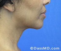 Beverly Hills Chin Liposuction Results - After - Case 12-1