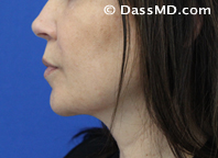 Beverly Hills Chin Liposuction Results - After - Case 3-1