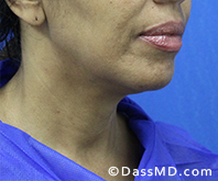 Beverly Hills Chin Liposuction Results - Before - Case 12-2