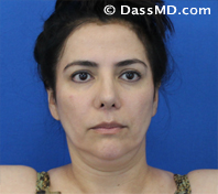 Beverly Hills Chin Liposuction Results - Before - Case 4-1