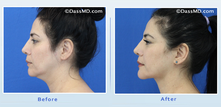 Beverly Hills Chin Liposuction Results - Before and After Photos