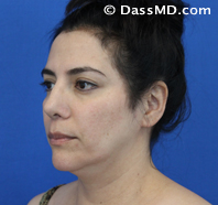 Beverly Hills Chin Liposuction Results - Before - Case 4-2