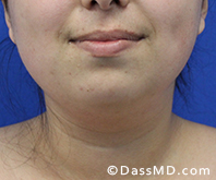 Beverly Hills Chin Liposuction Results - Before - Case 13-3