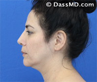 Beverly Hills Chin Liposuction Results - Before - Case 4-3