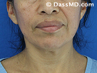 Beverly Hills Chin Liposuction Results - Before - Case 5-1