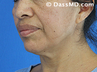 Beverly Hills Chin Liposuction Results - Before - Case 5-2