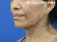 Beverly Hills Chin Liposuction Results - After - Case 5-2