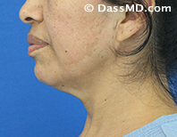 Beverly Hills Chin Liposuction Results - Before - Case 5-3