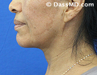 Beverly Hills Chin Liposuction Results - After - Case 5-3