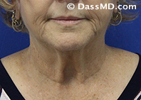 Beverly Hills Chin Liposuction Results - Before - Case 6-1