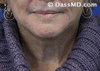 Beverly Hills Chin Liposuction Results - After - Case 6-1