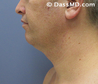 Beverly Hills Chin Liposuction Results - Before - Case 7-1
