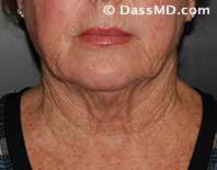 Beverly Hills Chin Liposuction Results - Before - Case 8-1