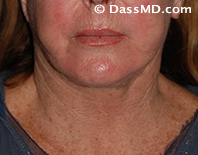 Beverly Hills Chin Liposuction Results - After - Case 8-1