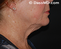 Beverly Hills Chin Liposuction Results - Before - Case 8-2