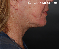 Beverly Hills Chin Liposuction Results - After - Case 8-2